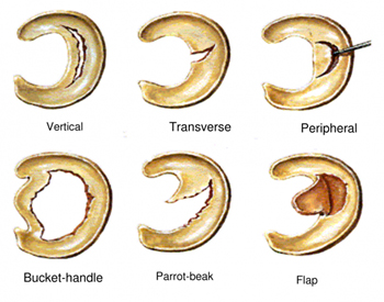 Meniscal Tears Types
