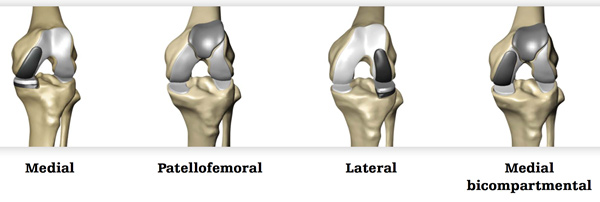 Robotic Partial Knee Replacement Total Hip Replacement