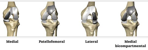 Partial Knee Replacement >> Robotic Partial Knee Replacement Total Hip Replacement