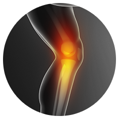 Knee Sports Injuries & Truma